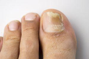 Grzybica paznokcia w niezaawansowanym stadium