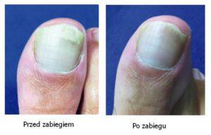 Paznokieć z grzybicą przed i po zabiegu S30 Podylas
