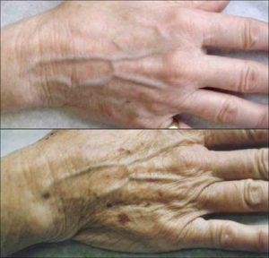 Dłoń przed i po zabiegu ReFirme™