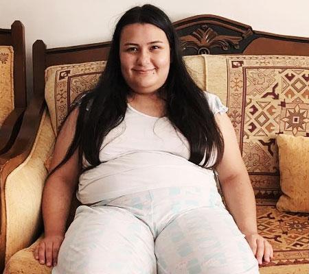 im exces de greutate trebuie să slăbească